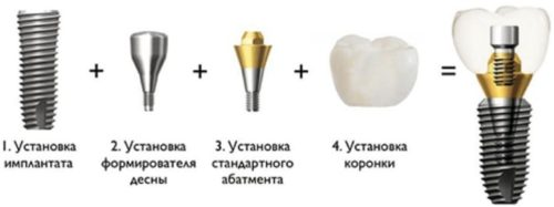 Имплантация зубов Стомик