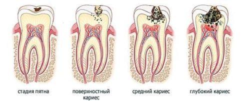 Лечение зубов Стомик