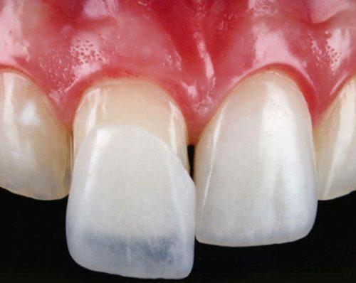 Протезирование в стоматологии Стомик