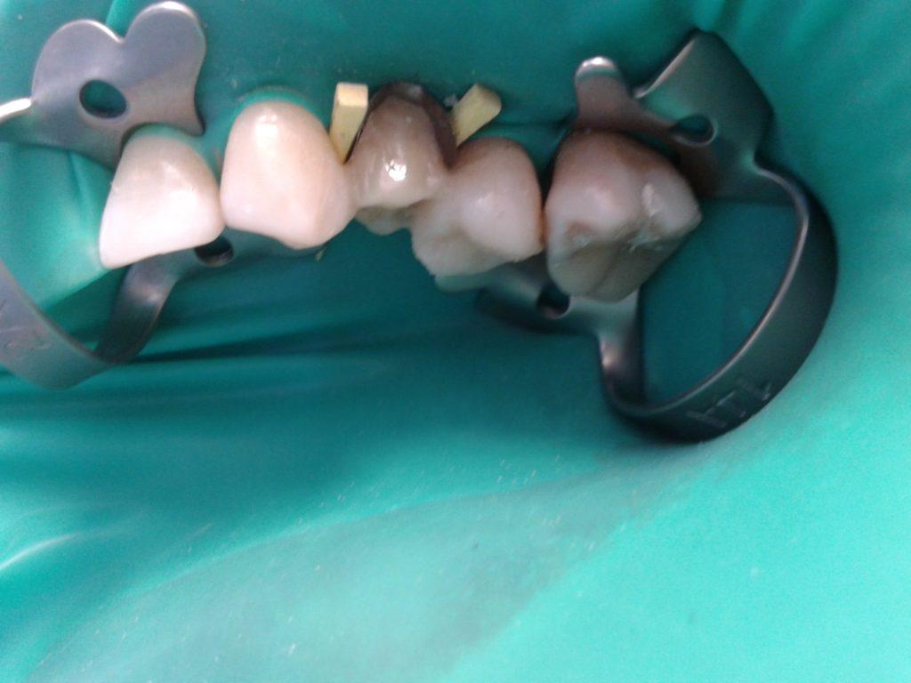 Реставрация и восстановление зуба в Калининграде