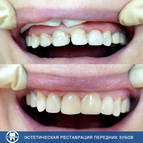 Лечение и протезирование зуба