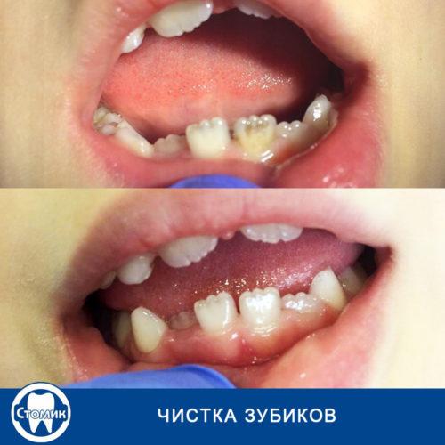 Лечение кариеса в Калининграде