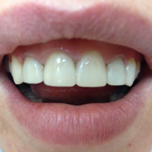 Установка мостов при протезирование зубов