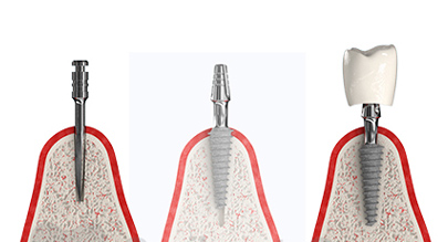 Имплантация зуба под ключ